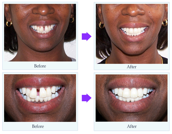 http://www.cosmeticdentistryguide.co.uk/authors/nick-simon/large-case1.jpg