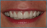 after 17 cerec veneers