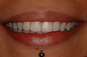 after 6 month smiles braces