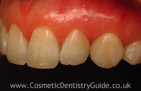 after cosmetic bonding treatment