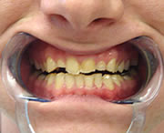 before denal veneers image