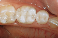 cerec fillings after image