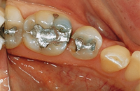 cerec fillings before image