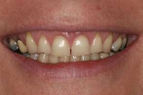 before cerec veneers
