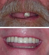 dental implants all missing teeth