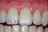 dental implant after placement
