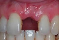 dental implants single tooth
