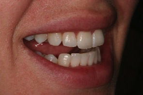 after inman aligner treatment lower straight teeth