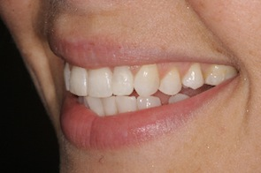 after inman aligner treatment