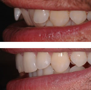 before and after inman aligner treatment in london
