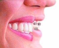 Invisalign Invisible braces | Cosmetic dentistry guide