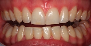 close up photo of straight teeth after invisalign treatment