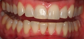 close up photo of straight teeth upper and lower teeth after invisalign treatment