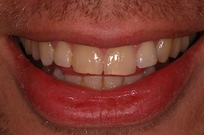 straight front teeth after invisalign braces