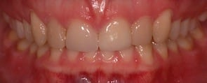 closed a gap between front teeth after invisalign treatment