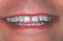 teeth gaps in front teeth
