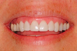 after lumineers to correct stained teeth