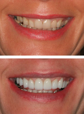 before and after mac veneers