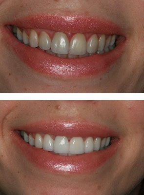 before and after mac veneers smile makoever London