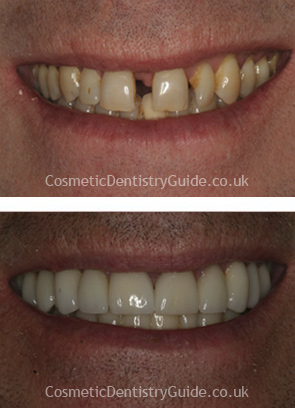 dental veneers close up photos