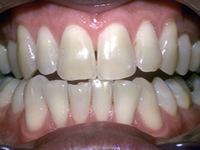 teeth whitening before