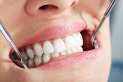 Hartlepool Salon Employee Pleads Guilty to Providing Illegal Teeth Whitening