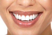 British Dental Association Warns Against Home Whitening Kits