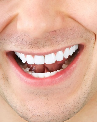 Father and Son Jailed for Selling Illegal Teeth Whitening Products