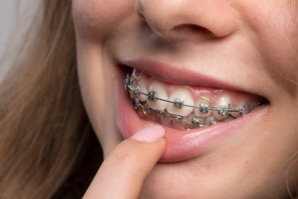 Obesity Can Affect Orthodontic Treatment, Dental Researchers Claim