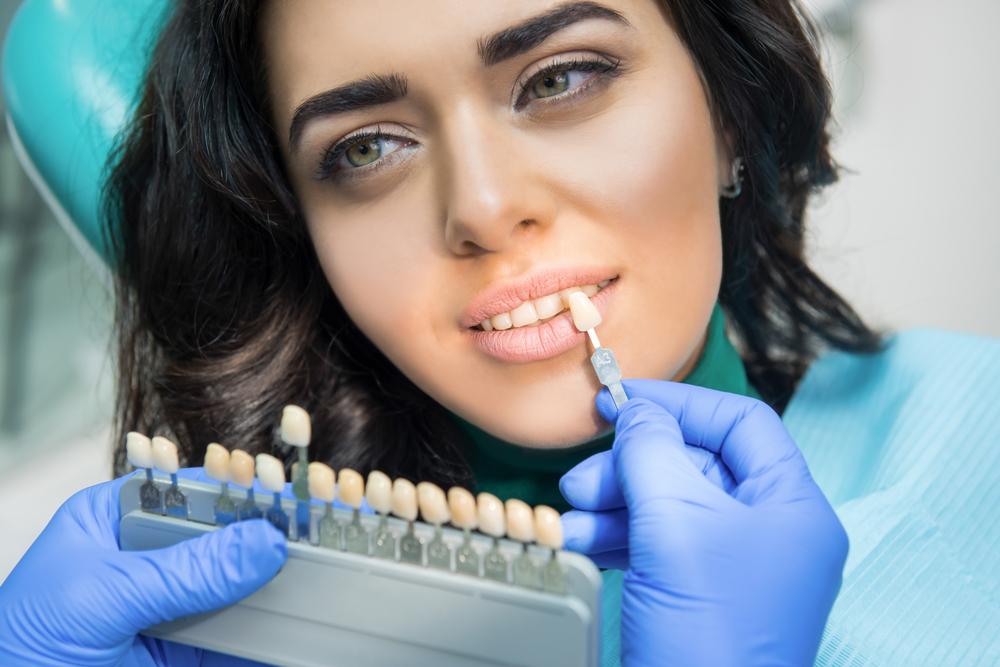 Is tooth whitening illegal? Everything you need to know before you have treatment