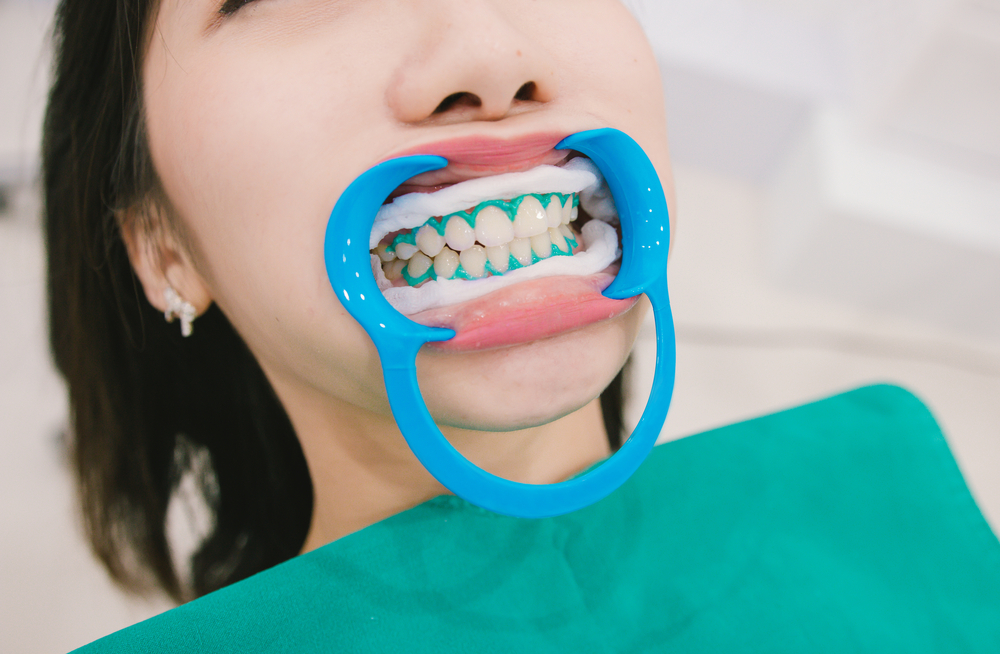 Illegal Teeth Whitening Treatments Rise, Claim GDC