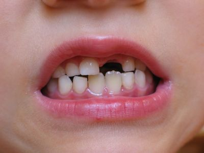 Dental problems contributing to more hospital admissions than asthma