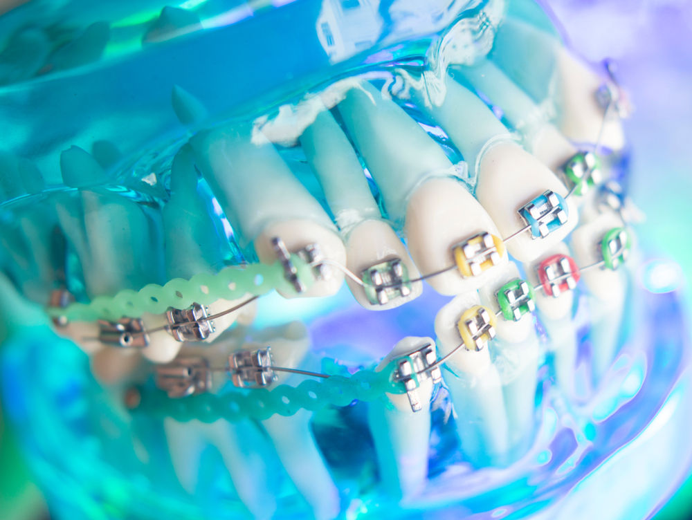 Dentists warn of the dangers of DIY brace videos on YouTube