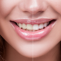 Woman fined by GDC said she had no idea that offering tooth whitening treatment was illegal