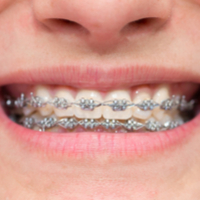 German insurance companies could limit braces cover after study reveals lack of evidence to support long-term dental health benefits