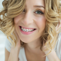 The reasons why more and more adults are opting for braces