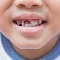 A third of Fife children still have tooth decay, despite major improvements