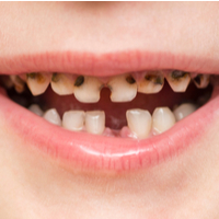 New study suggests fillings may not be the best option to treat childhood decay