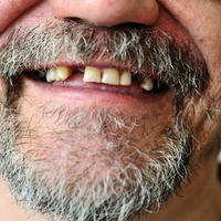 Volunteer dentists to provide free treatment for the homeless in Southampton