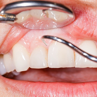 New study links gum disease to higher risks of some types of cancer