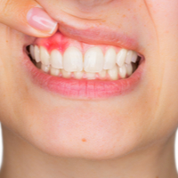 Study links gum disease to COVID-19 complications