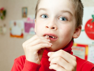 Top Doctor Voices Concerns About Child Tooth Decay