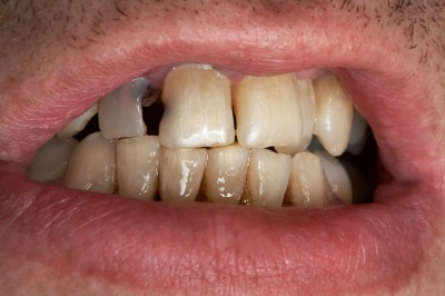 Having Bad Teeth Affects Confidence and Wellbeing